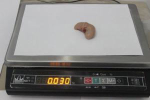 Turkey Testicles 1
